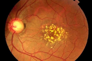 optic disc drusen