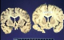 Creutzfeldt-Jakob left, healthy brain right